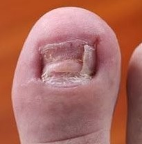 Nail Fungus Is Quite Common But It Often Remains The Dirty Secret Of Sufferer Onychomycosis Occurs More Frequently With Age And Can Make Nails