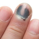 What can we do against black toenail fungus