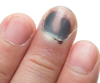 Black toenail fungus - What can we do against it ...